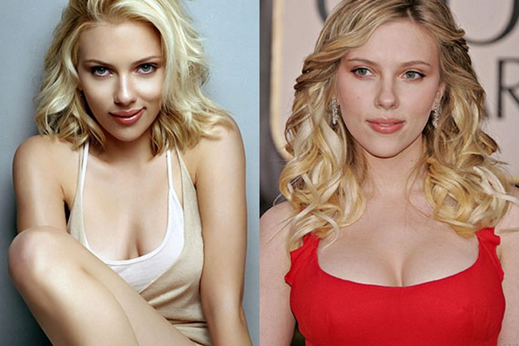 Scarlett Johansson Breast Size Reduction Photos