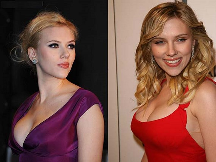 Scarlett Johansson Nose Job Before and After Photos