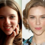 Scarlett Johansson Plastic Surgery Before & After Photos