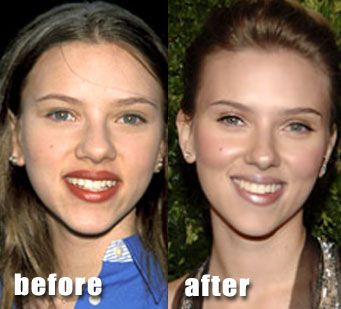 Scarlett Johansson Plastic Surgery For Nose Job