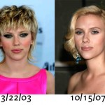 Scarlett Johansson Plastic Surgery For Nose Jobs