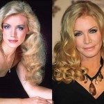 Shannon Tweed Plastic Surgery Before and After Photos