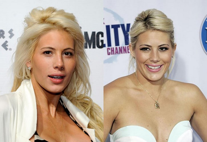 Shayne Lamas Plastic Surgery Before and After Photos