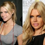 Sophie Monk Plastic Surgery Before and After Pictures