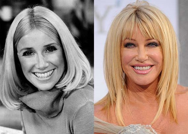 Suzanne Somers Plastic Surgery Before and After Photos