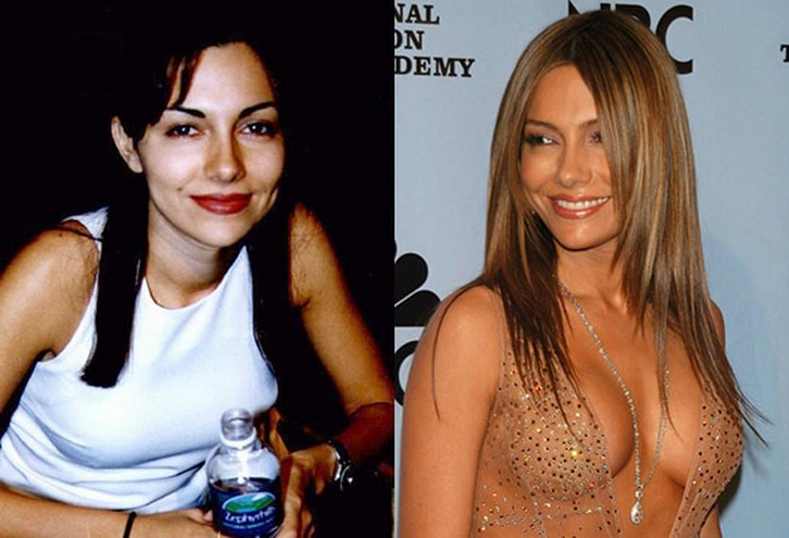 Vanessa Marcil Plastic Surgery Before and After Photos