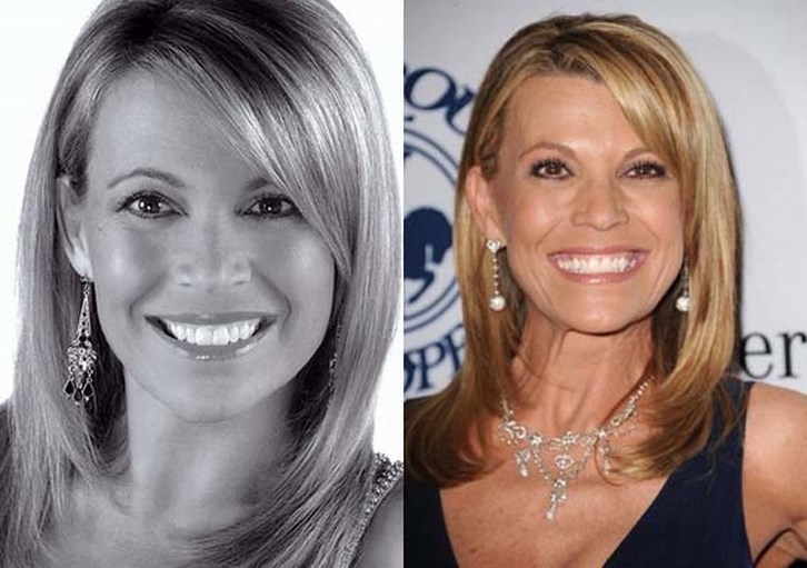 Vanna White Plastic Surgery Before and After Pictures