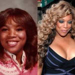 Wendy Williams Plastic Surgery Breasts Before and After Pictures