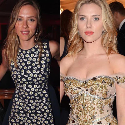 scarlett johansson breast implants