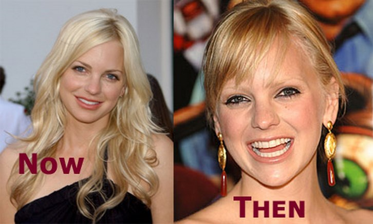 Anna Faris Plastic Surgery Lips