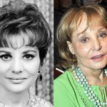 Barbara Walters Plastic Surgery Disaster Before and After Photos