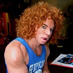 Carrot Top Plastic Surgery Pics