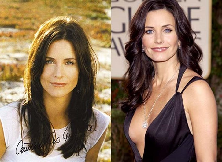 Courtney Cox Plastic Surgery Before and After Photos