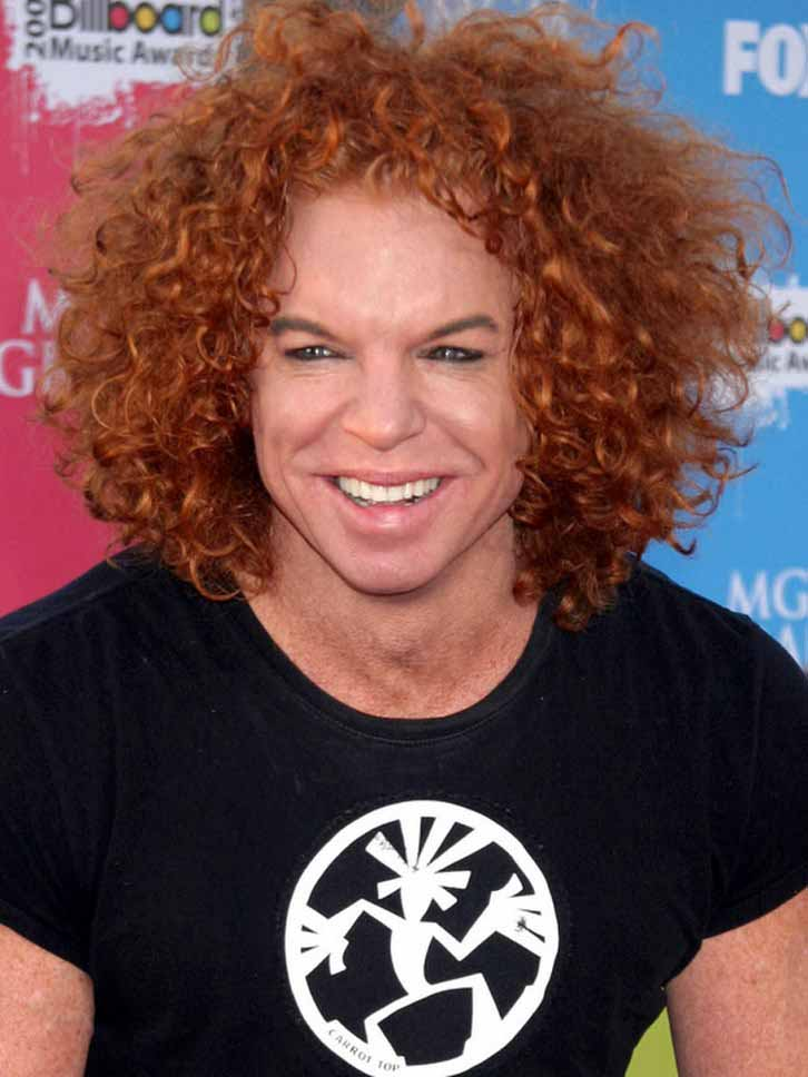 Did Carrot Top Have Plastic Surgery