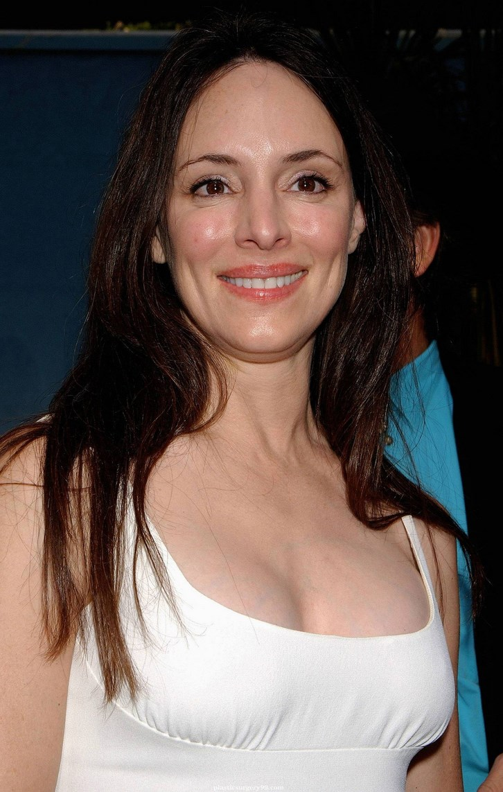 Madeleine Stowe Breast Implants