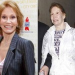 Did Mary Tyler Moore Have Plastic Surgery