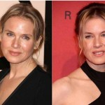 Did Renee Zellweger Get Plastic Surgery
