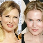 Did Renee Zellweger Have Plastic Surgery