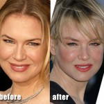 Has Renee Zellweger Had Plastic Surgery