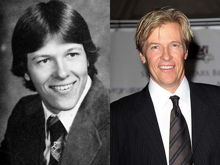 Jack Wagner Bad Plastic Surgery Before After Photos