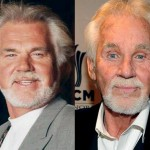 Kenny Rogers Cosmetic Surgery Photos