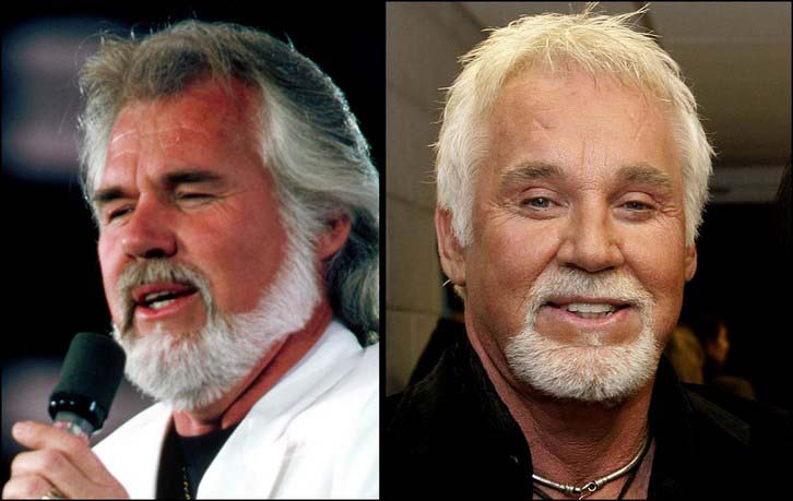 Kenny Rogers Eye Surgery