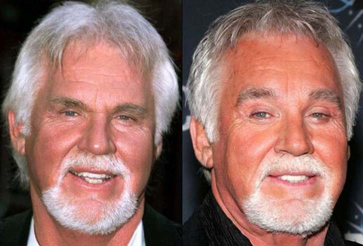Kenny Rogers Eyelid Surgery