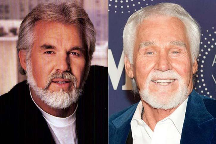 Kenny Rogers Face Surgery