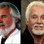 Kenny Rogers Plastic Surgery Disaster