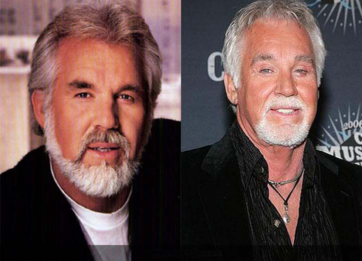 Kenny Rogers Plastic Surgery Gone Wrong