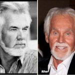 Kenny Rogers Surgery Gone Wrong