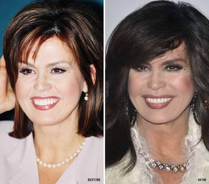 Marie Osmond Nose Job