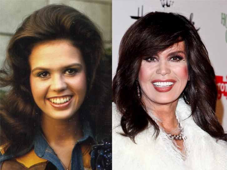 Marie Osmond Plastic Surgery Lips