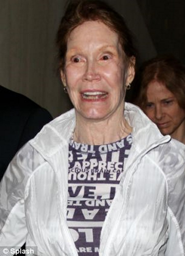 Mary Tyler Moore Plastic Surgery Bad