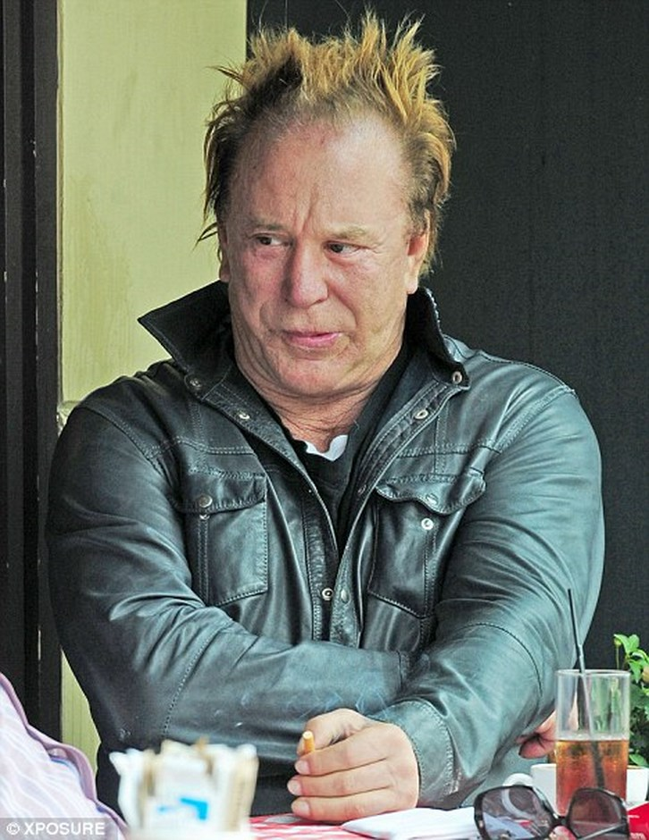 Mickey Rourke Plastic Surgery Gone Bad