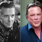 Mickey Rourke Plastic Surgery Progression