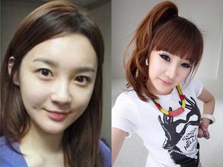 Park Bom Plastic Surgery Before and After Photos