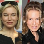 Renee Zellweger Nose Job