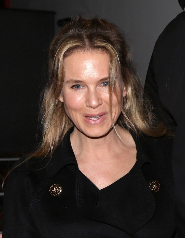 Renee Zellweger Plastic Surgery Gone Wrong