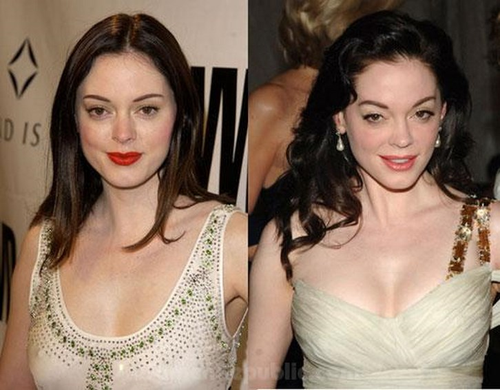 Rose Mcgowan Breast Implants