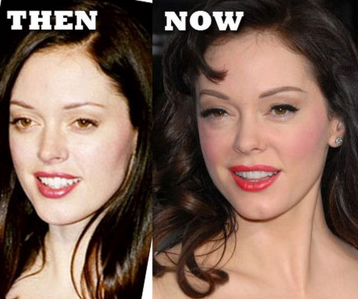 Rose Mcgowan Nose Job