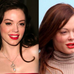 Rose Mcgowan Plastic Surgery Accident