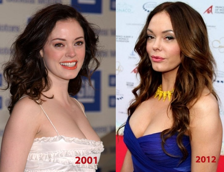 Rose Mcgowan Plastic Surgery Before and After Pics