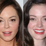 Rose Mcgowan Plastic Surgery Face