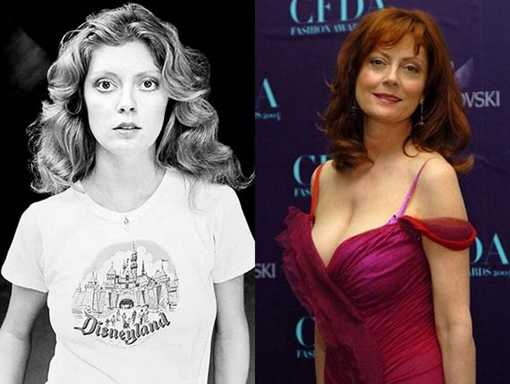 Susan Sarandon Plastic Surgery Breasts Before and After Photos