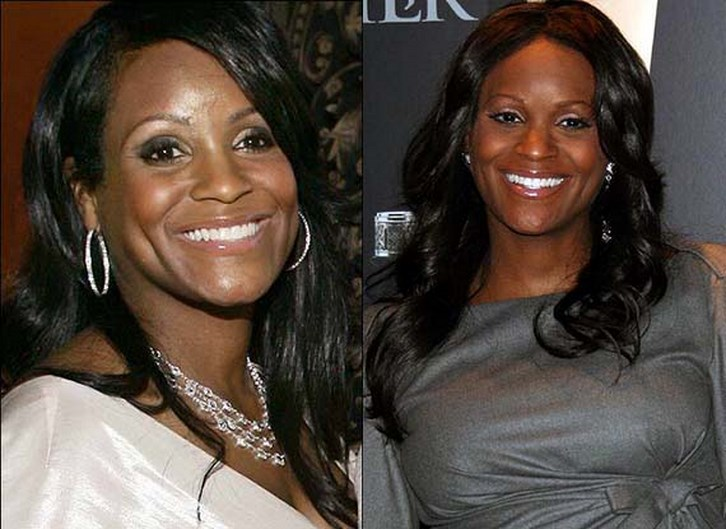 Tameka Foster Plastic Surgery Emergency Before After Photos