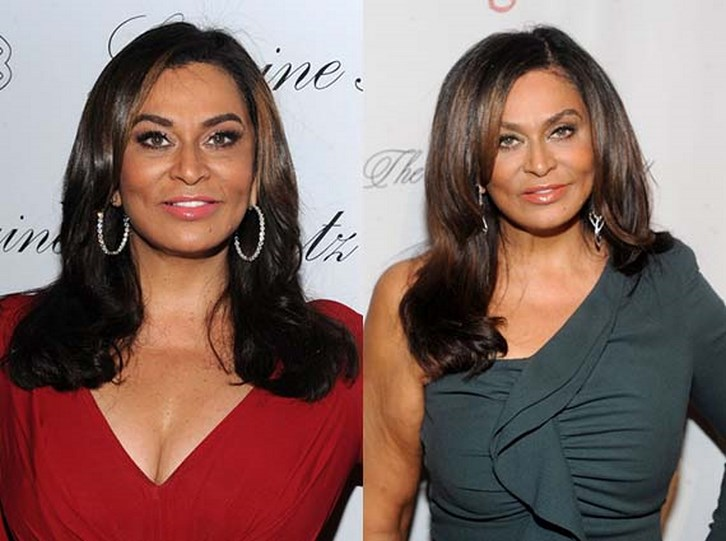 Tina Knowles Plastic Surgery Before and After Pictures