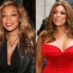 Does Wendy Williams Have Breast Implants
