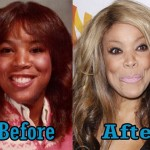 Wendy Williams Plastic Surgery Nose Job