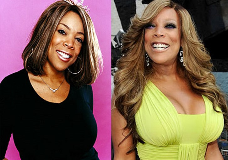 Wendy Williams before Breast Augmentation